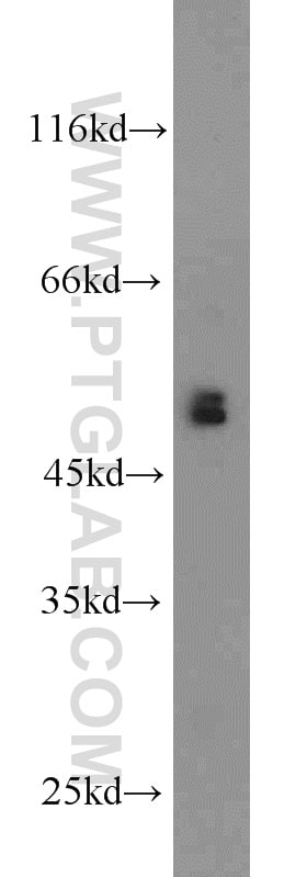 BBS8 Antibody in Western Blot (WB)