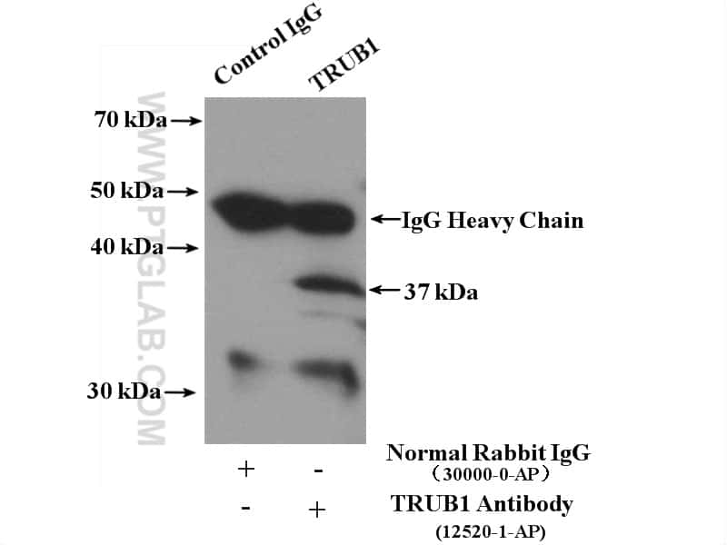 TRUB1 Antibody in Immunoprecipitation (IP)