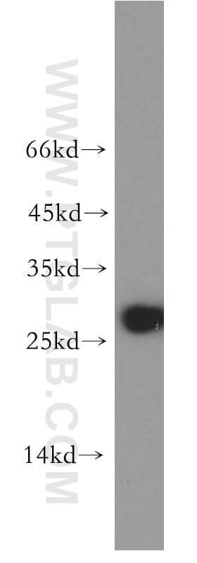 AK3 Antibody in Western Blot (WB)