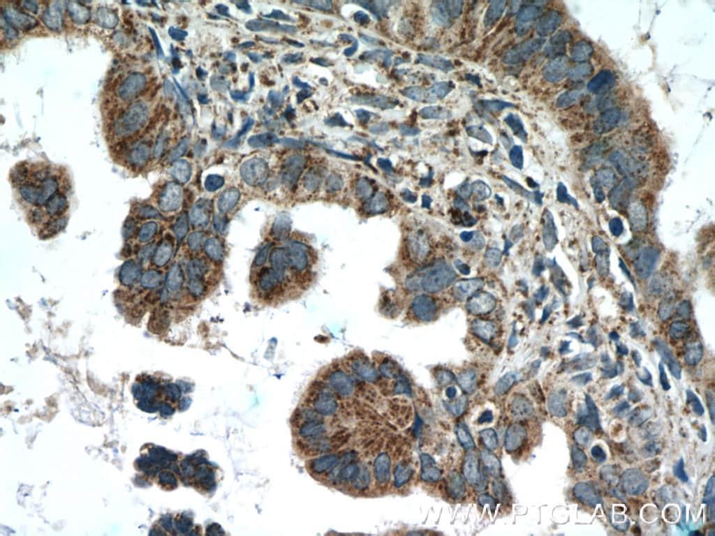 AMPK gamma2 Antibody in Immunohistochemistry (Paraffin) (IHC (P))
