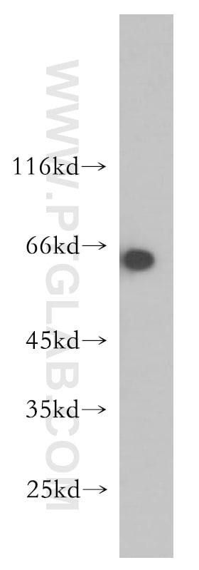 AMPK gamma2 Antibody in Western Blot (WB)