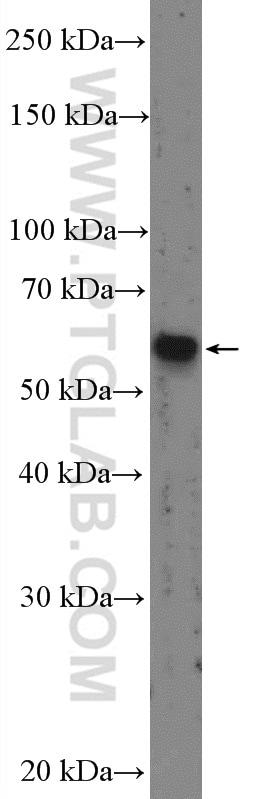 SMAD2 Antibody in Western Blot (WB)