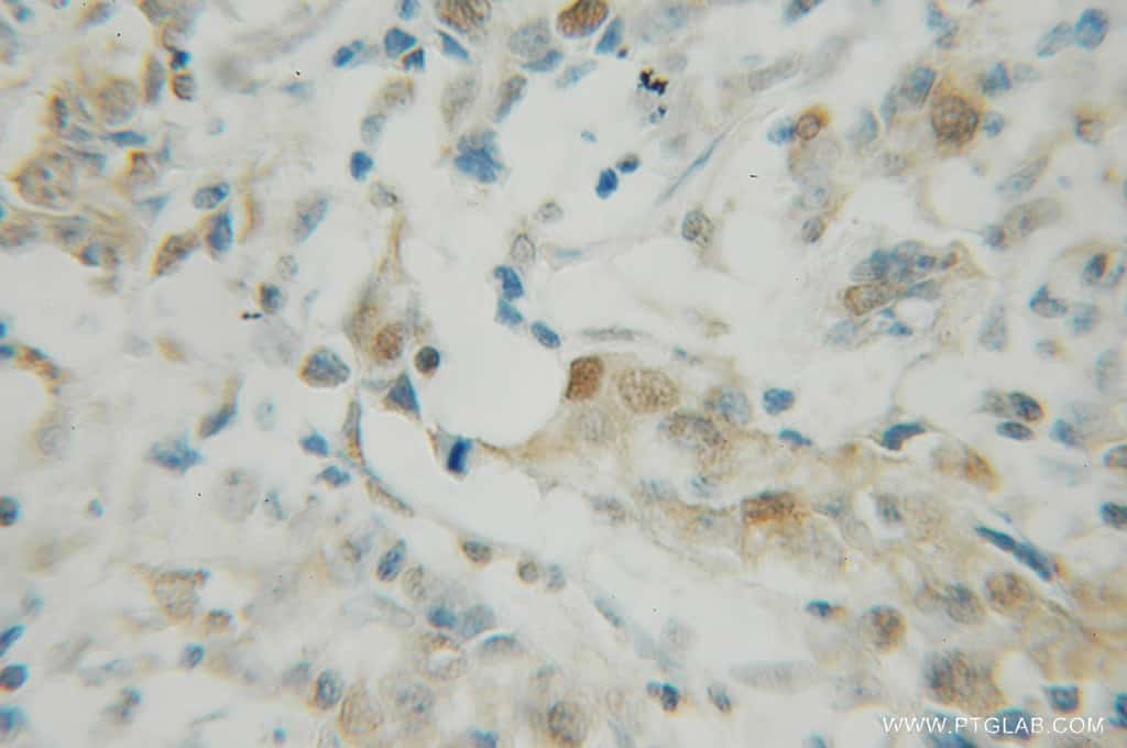 PDCD4 Antibody in Immunohistochemistry (Paraffin) (IHC (P))