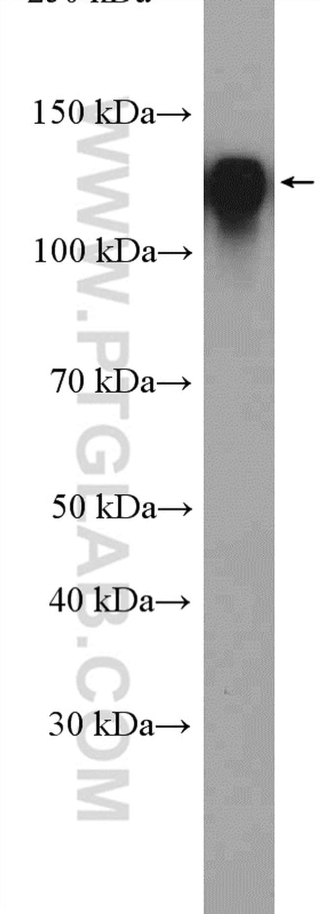 Integrin beta-1 Antibody in Western Blot (WB)