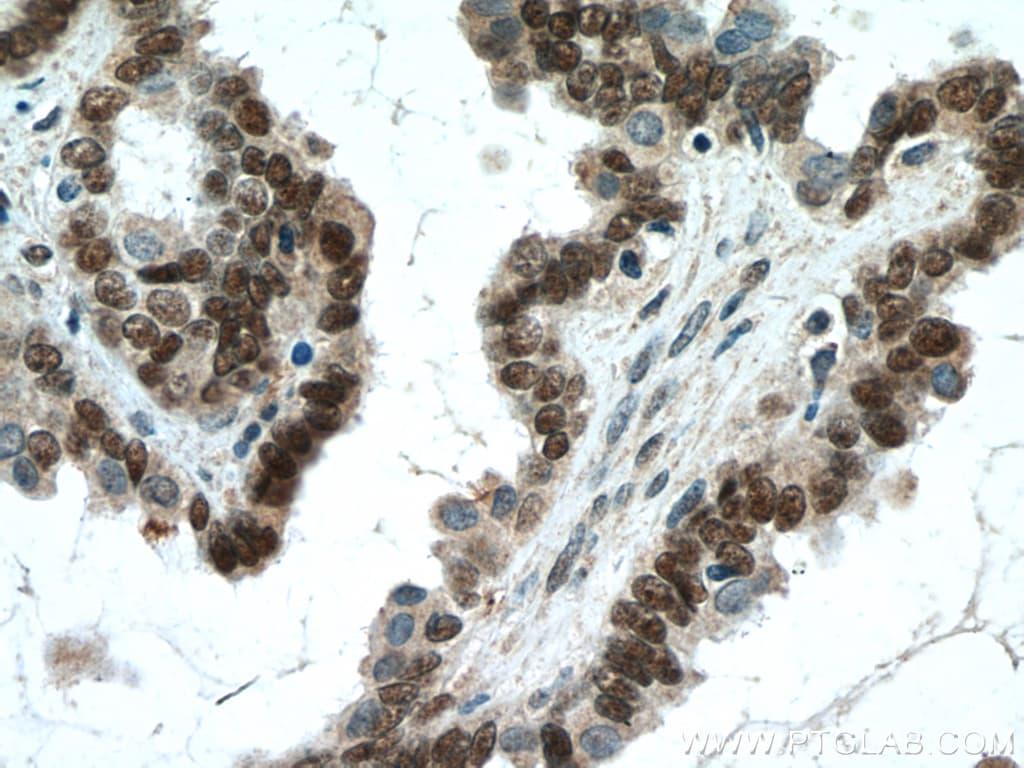 WT1 Antibody in Immunohistochemistry (Paraffin) (IHC (P))