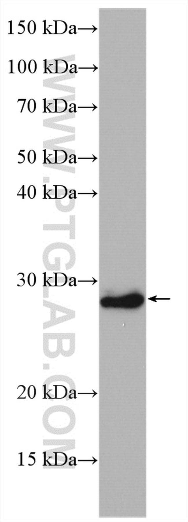 HOXB7 Antibody in Western Blot (WB)
