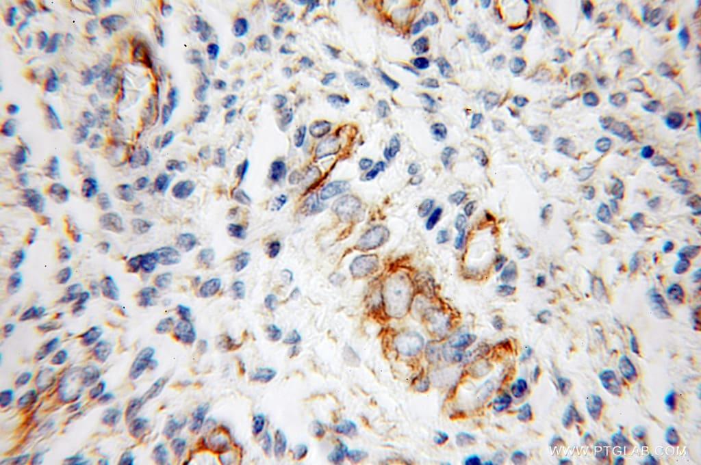 Cadherin-13 Antibody in Immunohistochemistry (Paraffin) (IHC (P))