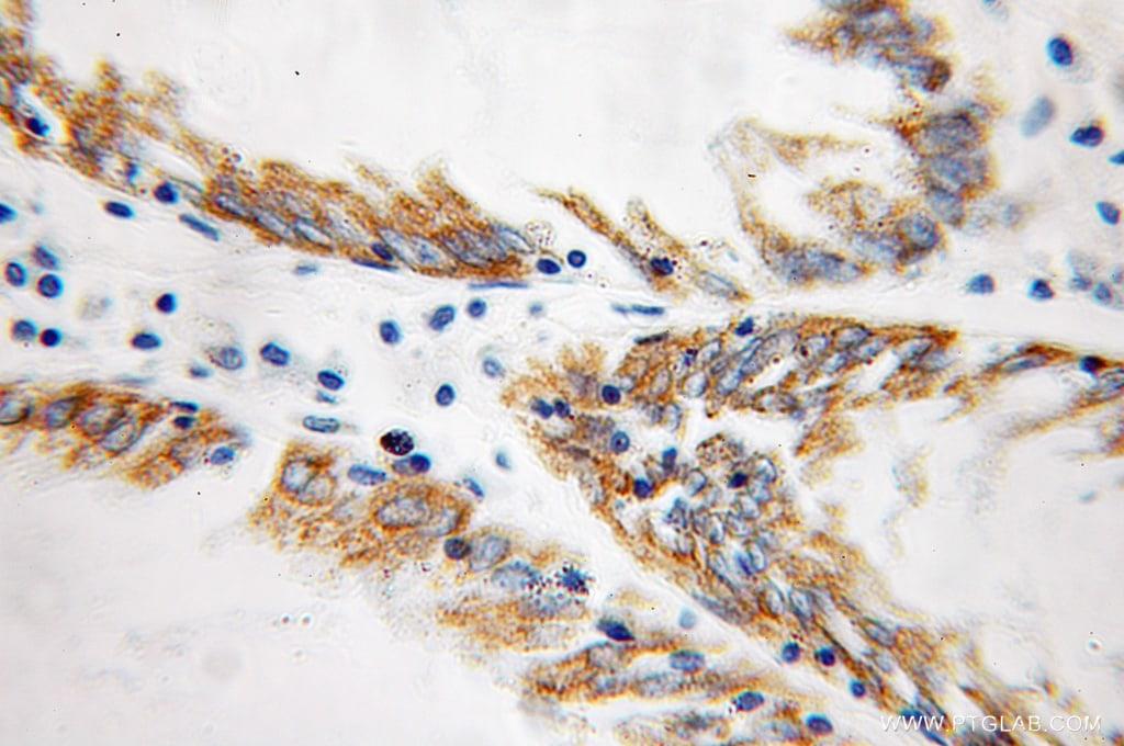 SUCLA2 Antibody in Immunohistochemistry (Paraffin) (IHC (P))