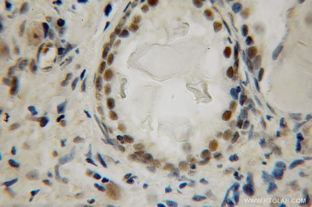 LIG4 Antibody in Immunohistochemistry (Paraffin) (IHC (P))
