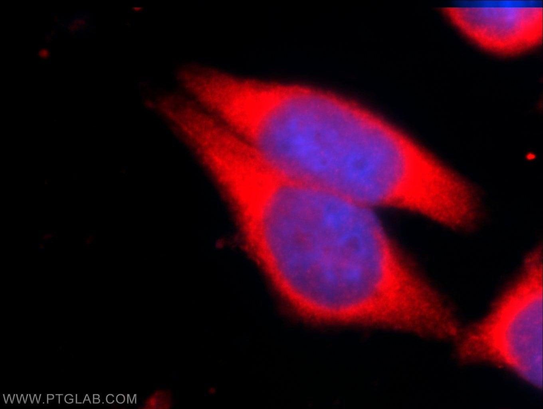 BMPR1A Antibody in Immunofluorescence (IF)