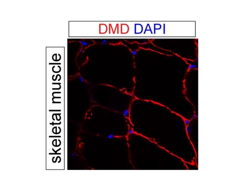 Dystrophin Antibody in Immunofluorescence (IF)