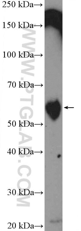 TROVE2 Antibody in Western Blot (WB)