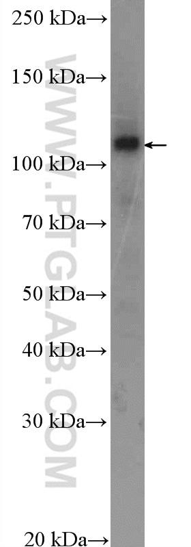 SKIV2L2 Antibody in Western Blot (WB)