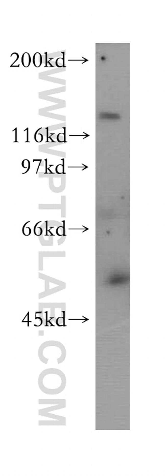 RabGEF1 Antibody in Western Blot (WB)