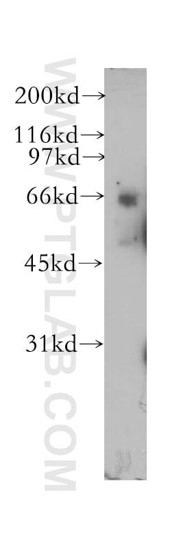PDE12 Antibody in Western Blot (WB)