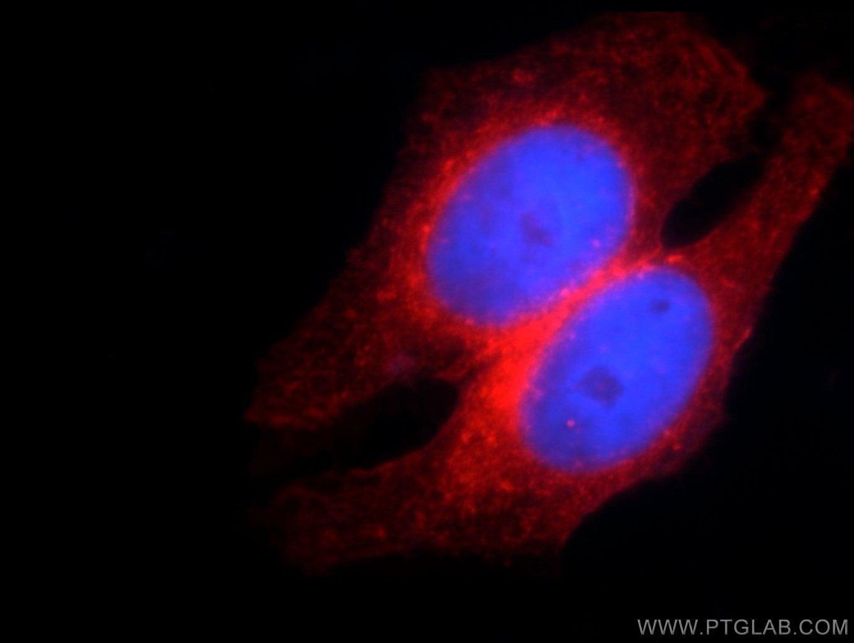 IFITM2 Antibody in Immunocytochemistry (ICC/IF)