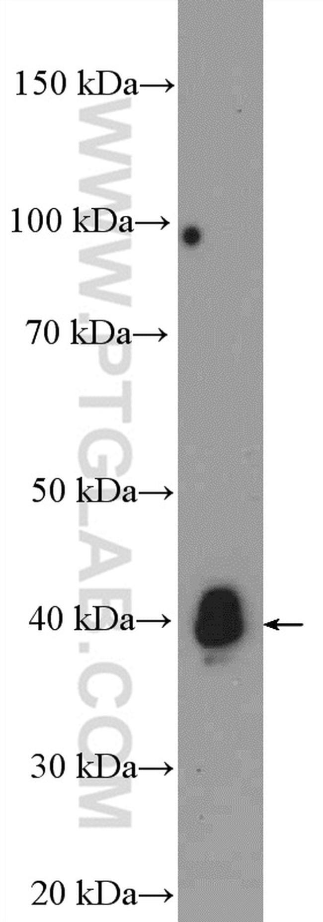 HNRNPD Antibody in Western Blot (WB)