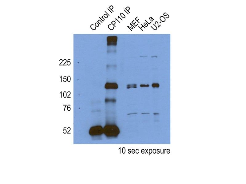 CP110 Antibody in Immunoprecipitation (IP)