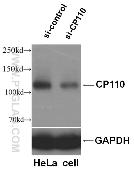 CP110 Antibody in Western Blot (WB)