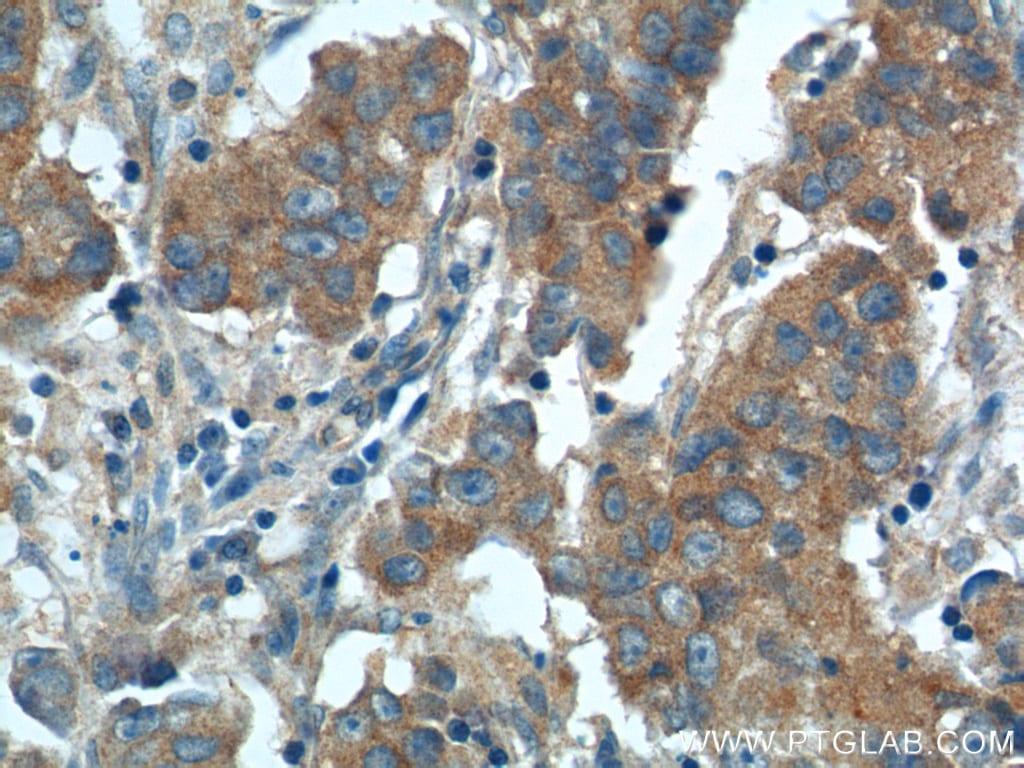 CP110 Antibody in Immunohistochemistry (Paraffin) (IHC (P))