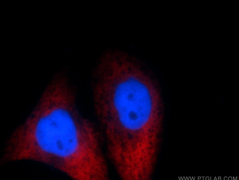 MAGEB4 Antibody in Immunofluorescence (IF)
