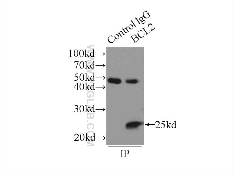 BCL2 Antibody in Immunoprecipitation (IP)