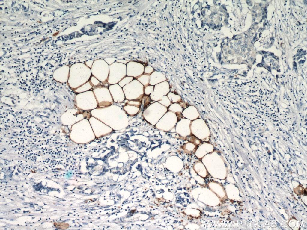 FABP4 Antibody in Immunohistochemistry (Paraffin) (IHC (P))