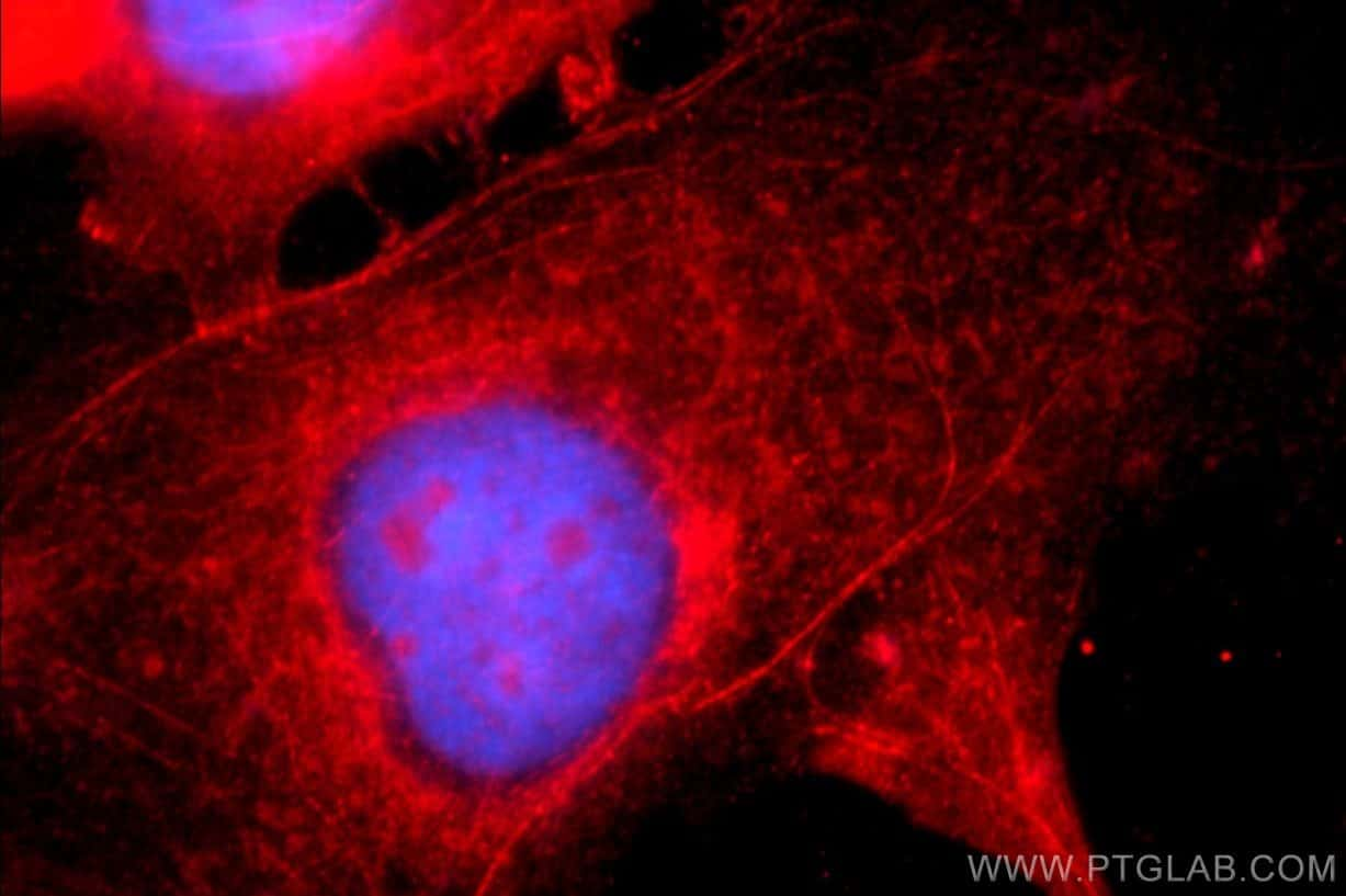 Alpha E catenin Antibody in Immunofluorescence (IF)