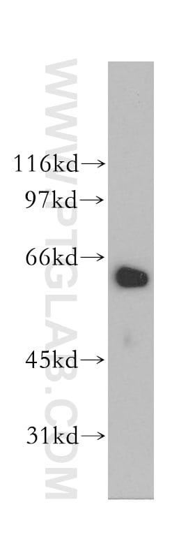 LGTN Antibody in Western Blot (WB)