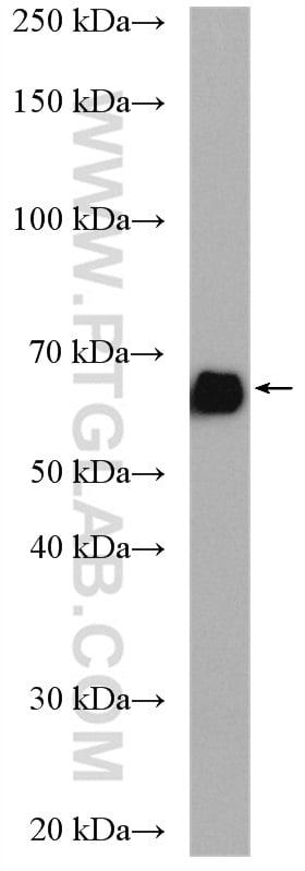 KGA/GAC Antibody in Western Blot (WB)
