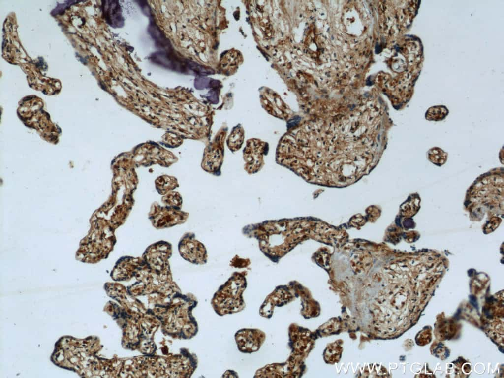 SULT2B1 Antibody in Immunohistochemistry (Paraffin) (IHC (P))