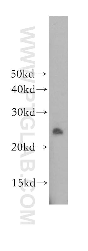 DUSP19 Antibody in Western Blot (WB)