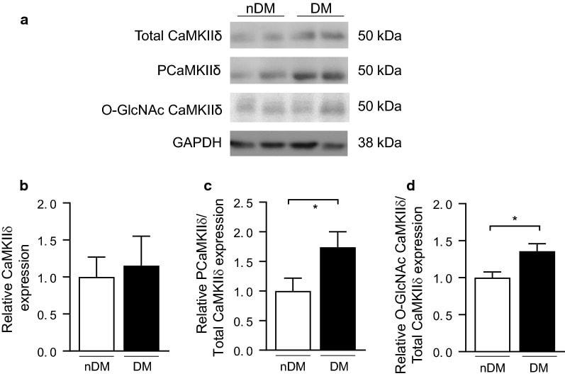 CaMKII delta Antibody