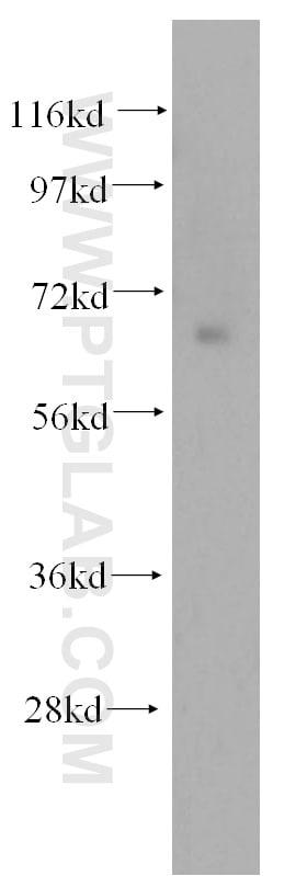 NFE2L1 Antibody in Western Blot (WB)