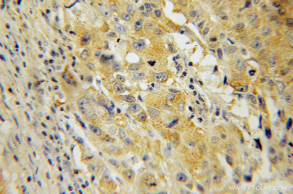 IMPDH2 Antibody in Immunohistochemistry (Paraffin) (IHC (P))