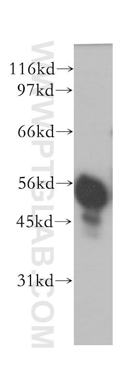 IMPDH2 Antibody in Western Blot (WB)