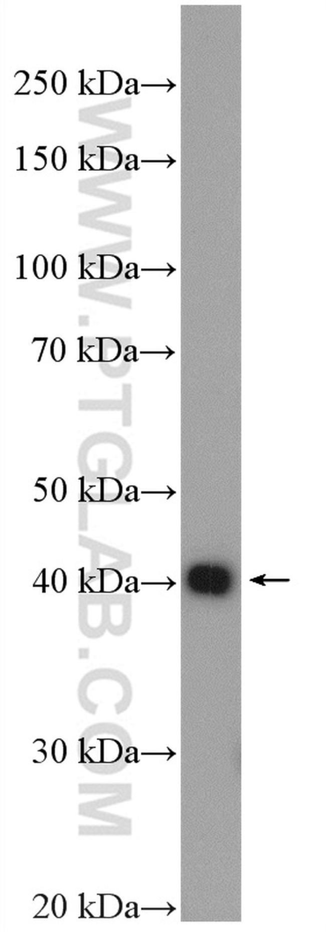 CHAD Antibody in Western Blot (WB)