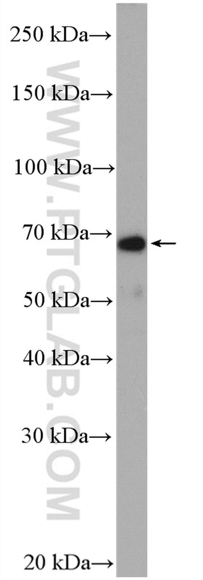 NF-L Antibody in Western Blot (WB)