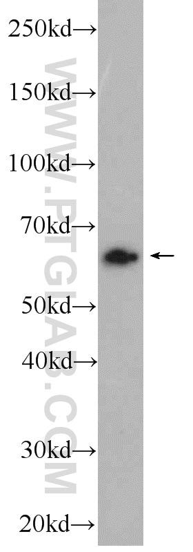 SACM1L Antibody in Western Blot (WB)