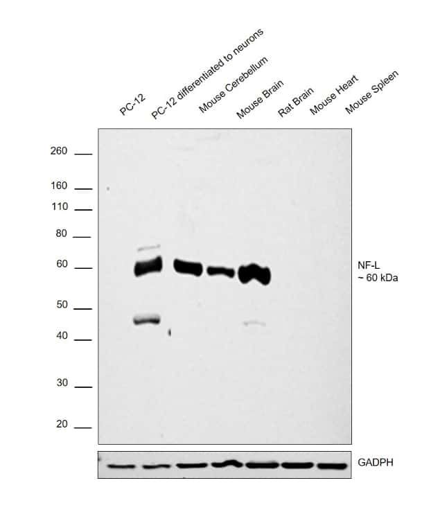 NEFL Antibody in Relative expression
