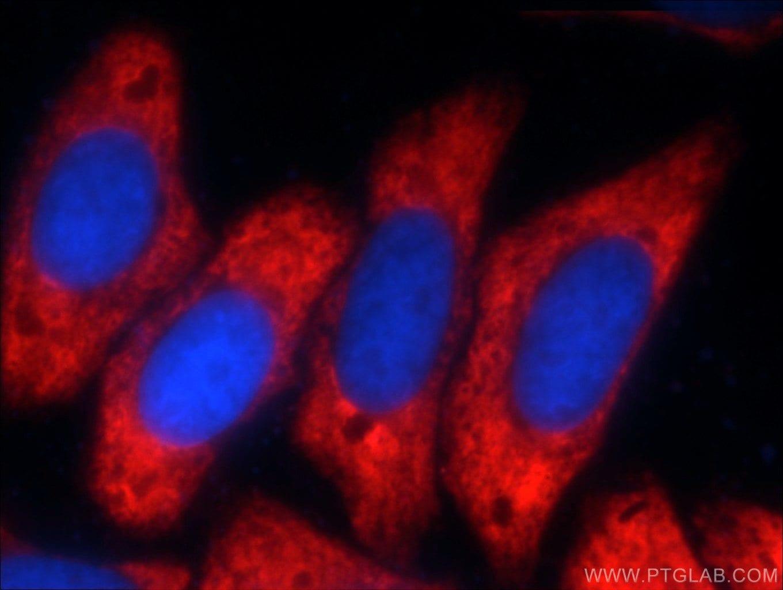 G3BP1 Antibody in Immunofluorescence (IF)