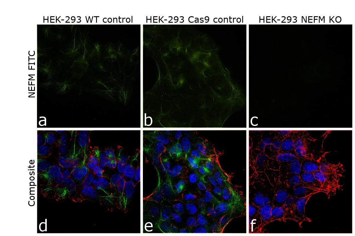 NEFM Antibody in Immunocytochemistry (ICC/IF)