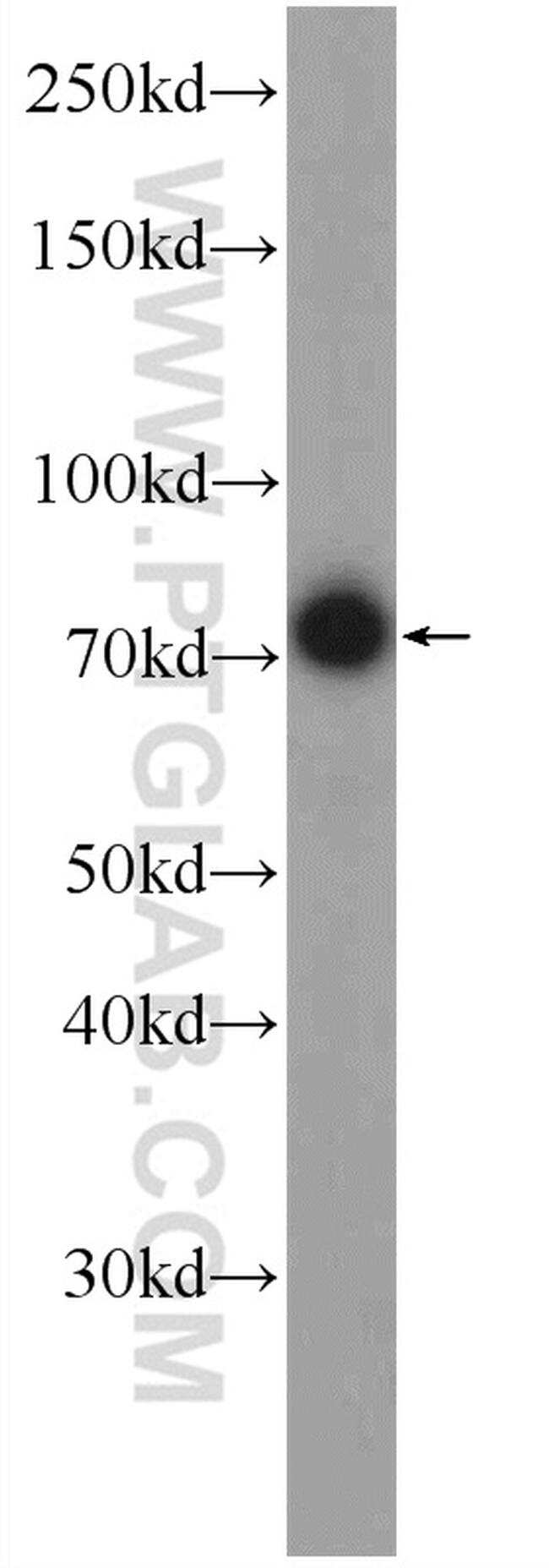 FREM1 Antibody in Western Blot (WB)