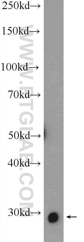 SNAI1 Antibody in Western Blot (WB)