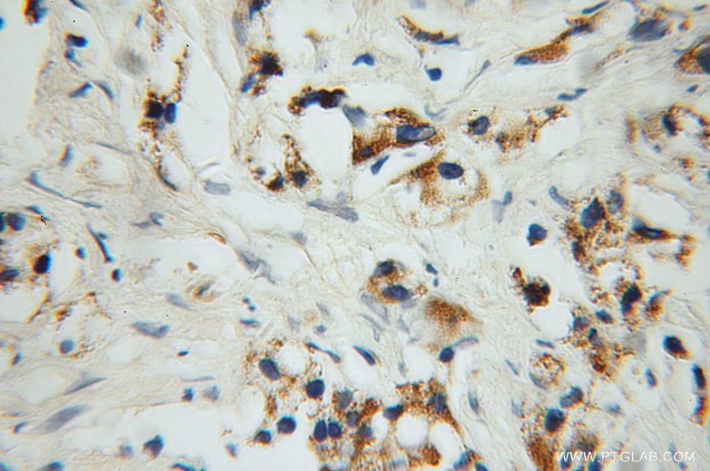 PYCR1 Antibody in Immunohistochemistry (Paraffin) (IHC (P))