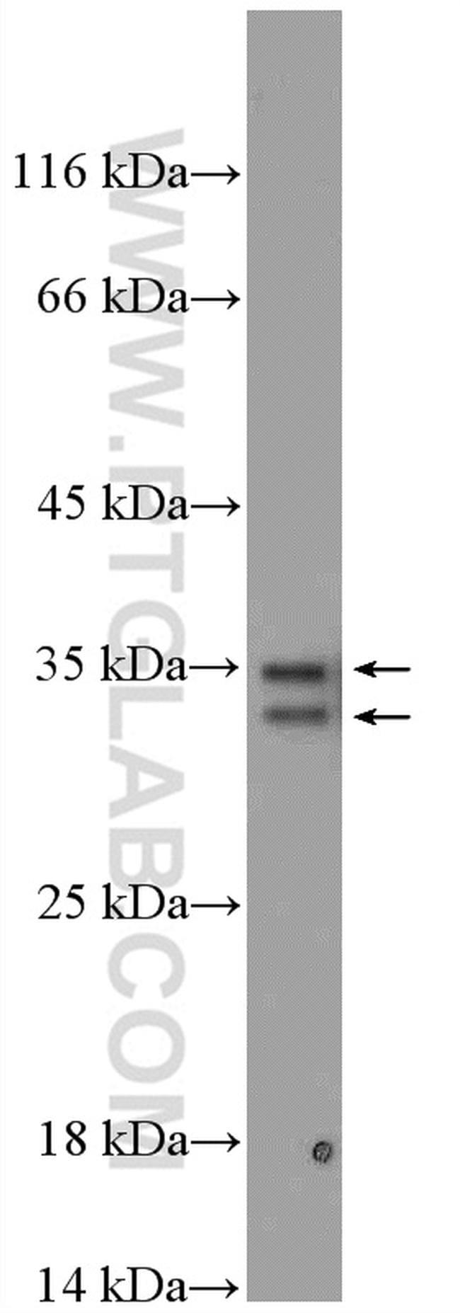PYCR1 Antibody in Western Blot (WB)