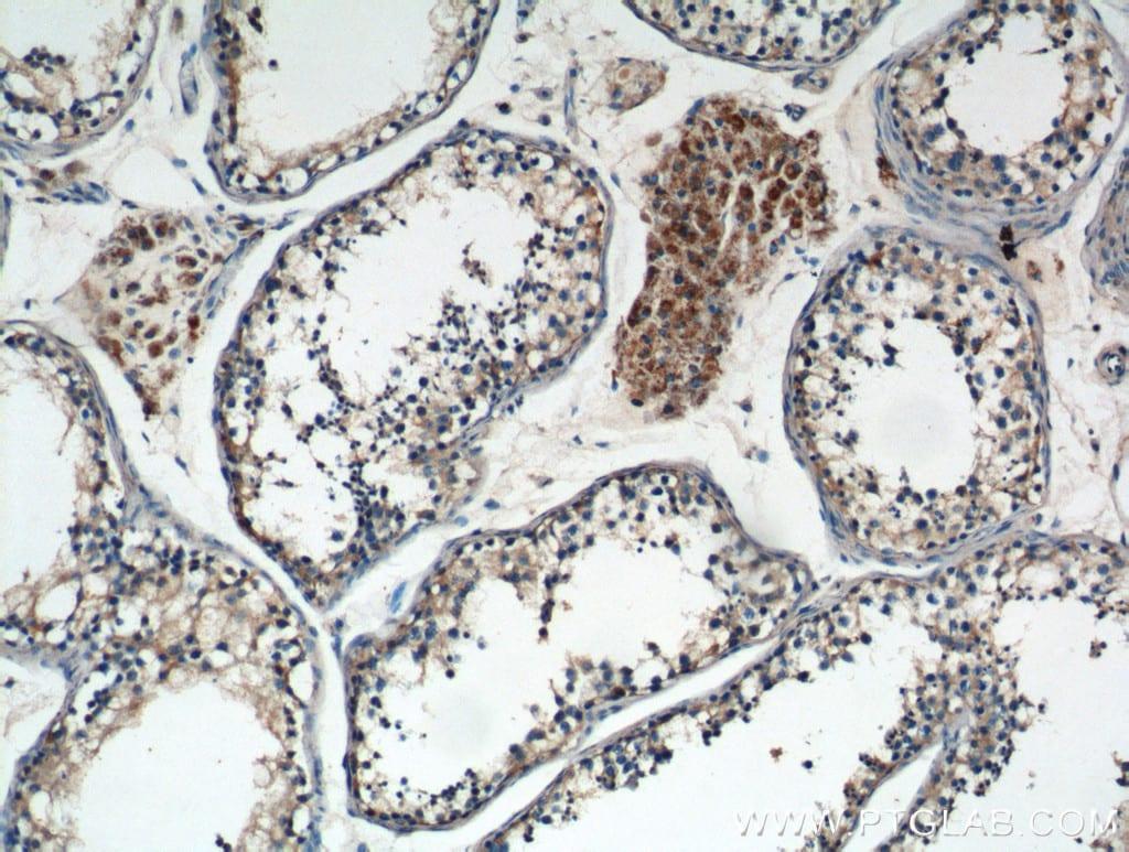 TNF beta Antibody in Immunohistochemistry (Paraffin) (IHC (P))