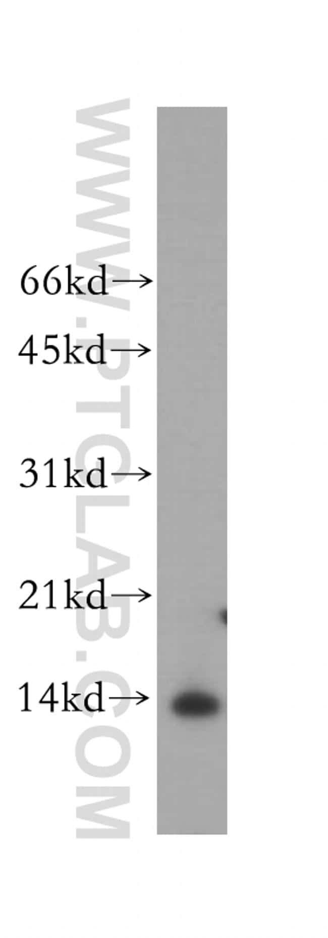 PHPT1 Antibody in Western Blot (WB)
