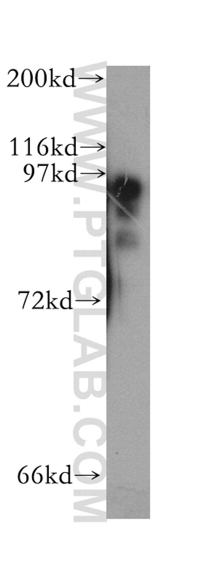 PKD2L1 Antibody in Western Blot (WB)