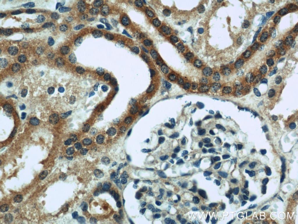 ZFYVE16 Antibody in Immunohistochemistry (Paraffin) (IHC (P))